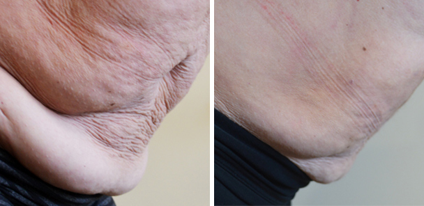 belly before and after patient front photo 8