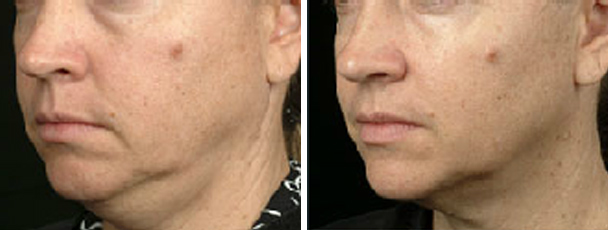 man face before and after patient left side photo 10