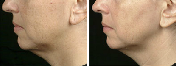 man face before and after patient left side photo 12