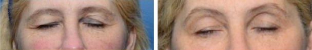 woman face before and after patient eyes front photo 17