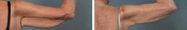 woman face before and after patient eyes hands photo 19
