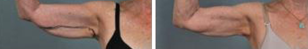 woman face before and after patient eyes hands photo 20