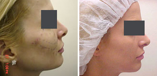 woman face before and after patient side photo 2