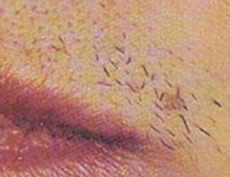Before Laser Hair Removal Treatment