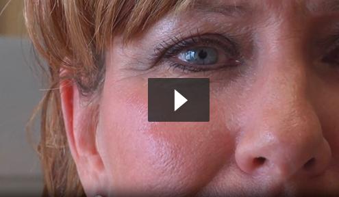 Stem Cell Facelift video3