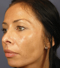 ViPeel (7 days post peel) woman patient after photo 2