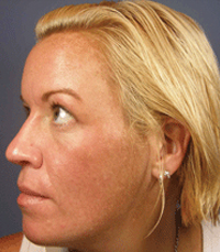 ViPeel (7 days post peel) woman patient after photo 4