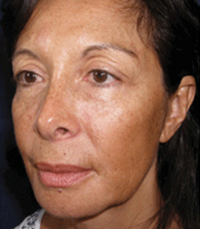 ViPeel (7 days post peel) woman patient after photo 6