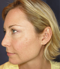ViPeel (7 days post peel) woman patient after photo 8