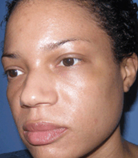 ViPeel (7 days post peel) woman patient after photo 10