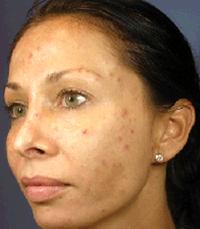 ViPeel (7 days post peel) woman patient before photo 1