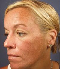 ViPeel (7 days post peel) woman patient before photo 3