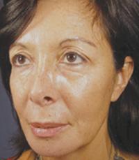 ViPeel (7 days post peel) woman patient before photo 5