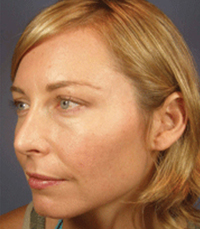 ViPeel (7 days post peel) woman patient before photo 7