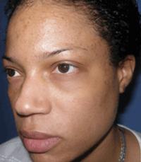ViPeel (7 days post peel) woman patient before photo 9