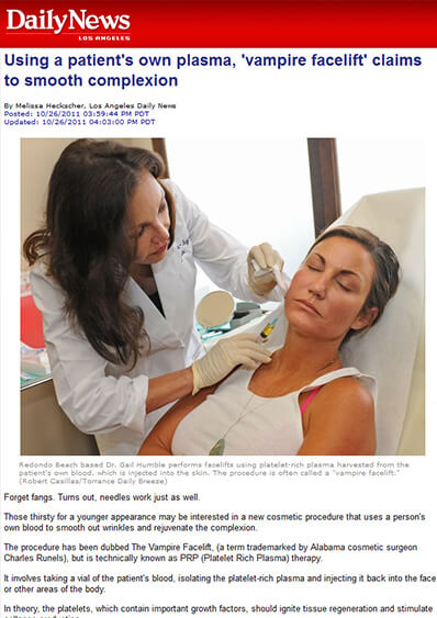 Los Angeles Daily News interview with Dr. Humble about the Vampire Facelift photo