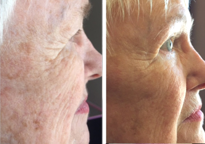 photos patient before and after