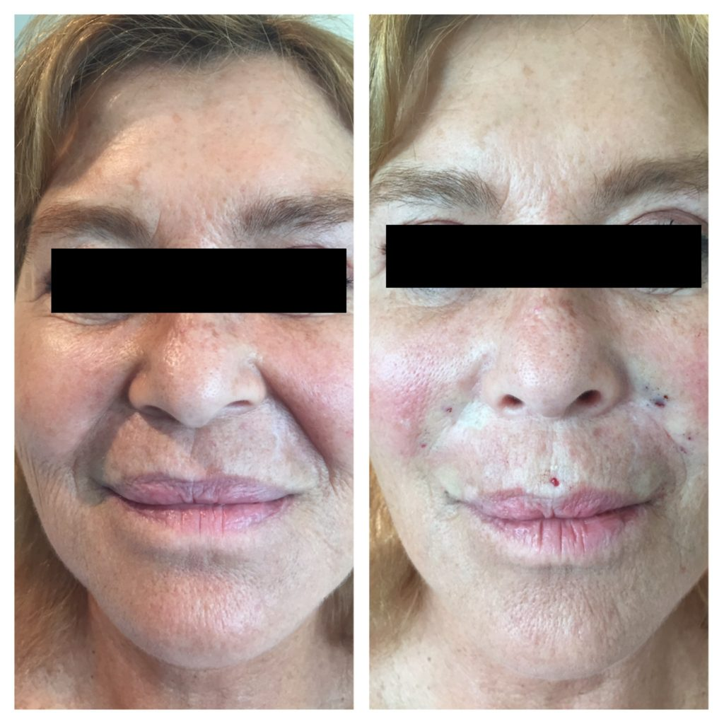 Wonderful Results with Thread Lifts |