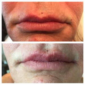 Instalift New Alternative To Lip Augmentation |